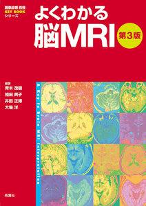 よくわかる脳MRI第3版