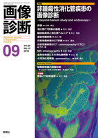 【非腫瘍性消化管疾患の画像診断 -beyond barium study and endoscopy-】 MR enterography