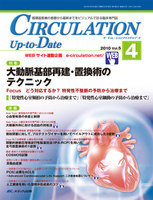 CIRCULATION Up‐to‐Date 循環器医療の基礎から最新までをビジュアルで診る臨床専門誌 第5巻4号(2010-4)