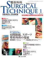 Orthopaedic surgical technique 脊椎 頸椎脱臼骨折に対する低侵襲手術