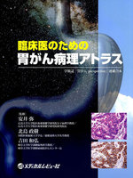 第5章 Group分類 Indefinite for neoplasia、Group 2とは
